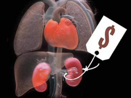 weltweiter-organhandel