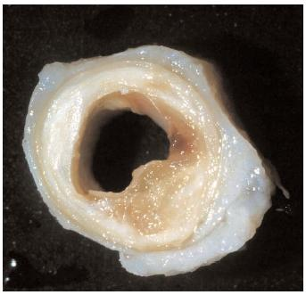 No, it's not a lard donut. It's your arteries all gummed up with plaque.