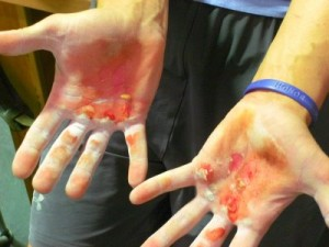 Avoid this ouchy when doing high-rep kettlebell work by learning good form first