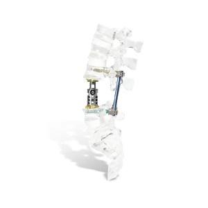 Titanium alloy VBR expandable