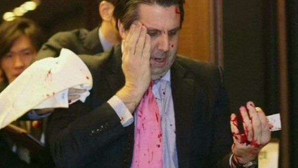 US Ambassador Mark Lippert was slashed across the face