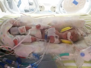 blod transfusion, blood donor, NICU, preemie
