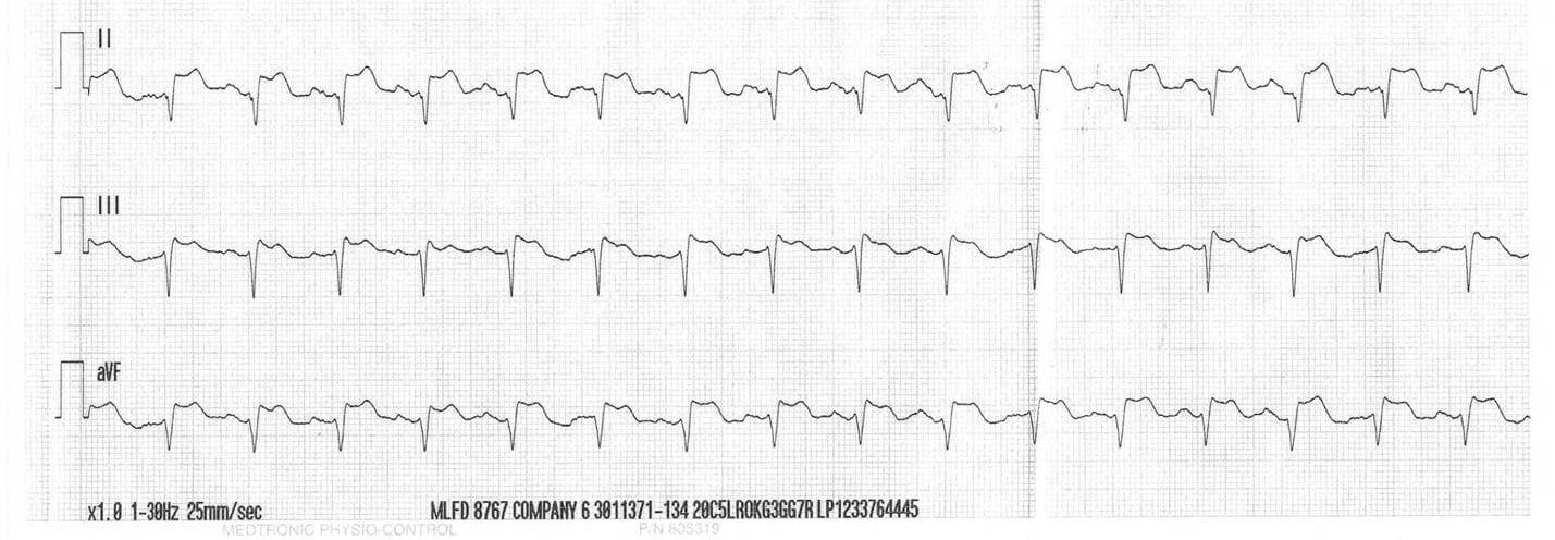 """... to compromise and take a quick look with the rhythm strip (""""monitor  mode"""") along with his vital signs. He sees the following strip on his  monitor:"""