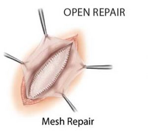 Open-Mesh-Repair