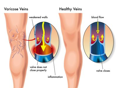 Varicose vein graphic