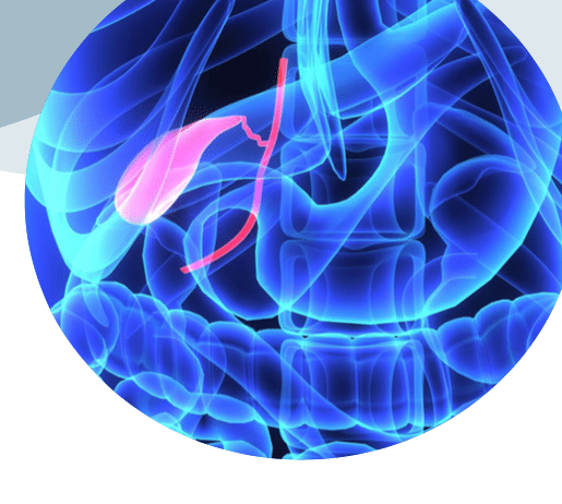What To Know If You Need Gallbladder Surgery