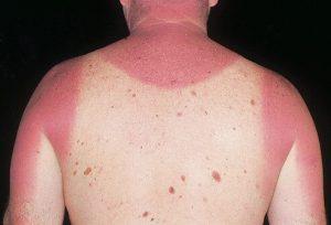acute-sunburn-10-1