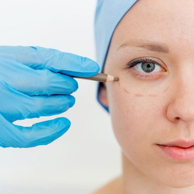 Eyelid Surgery - Premier Plastic Surgery - Knoxville, TN