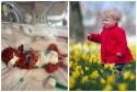 When Adaira Tanner, from Aberdeen, was born weighing just 1lb 10oz,