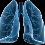 Malattia polmonare da micobatteri non tubercolari (NTM – LD)