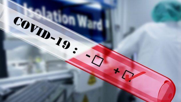 Coronavirus, Arzano: iniziato lo screening di massa