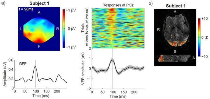 Fig.3. EEG (a) and fMRI (b) responses to the VEP run utilizing reversing-checkerboard stimulation.