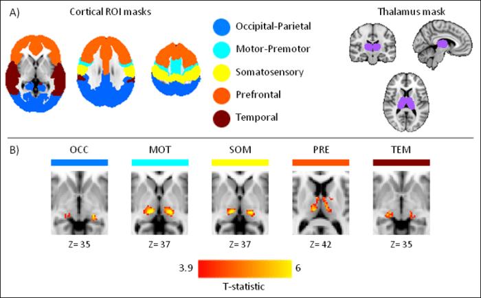 Understanding how sleep affects the human thalamus with EEG-fMRI - Figure 1: (A) cortical and thalamic masks used to define thalamic ROIs using FC, (B) the five thalamic ROIs