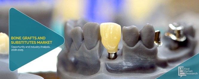 Bone Grafts and Substitutes Market is Striving in Worldwide with Top Key Players are Arthrex, Inc., Baxter International Inc., Integra LifeSciences Holdings Corporation, Johnson & Johnson, Medtronic P 2