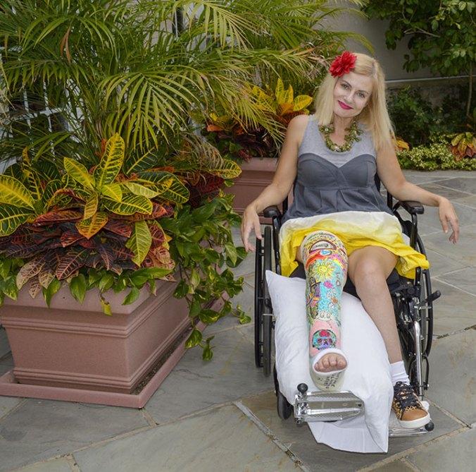female in colorful art leg cast broken femur