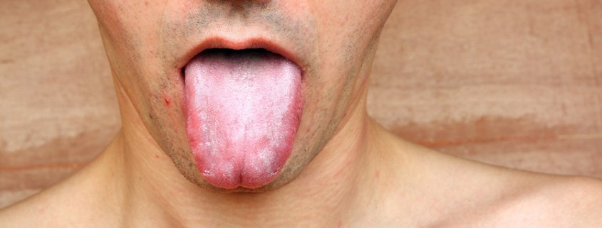 The Heavy Consequences Of Dry Mouth