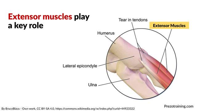 Tennis Elbow Example For Technical Presentations 3