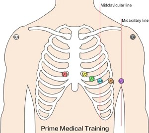 The Ultimate 12Lead ECG Placement Guide (With Illustrations)