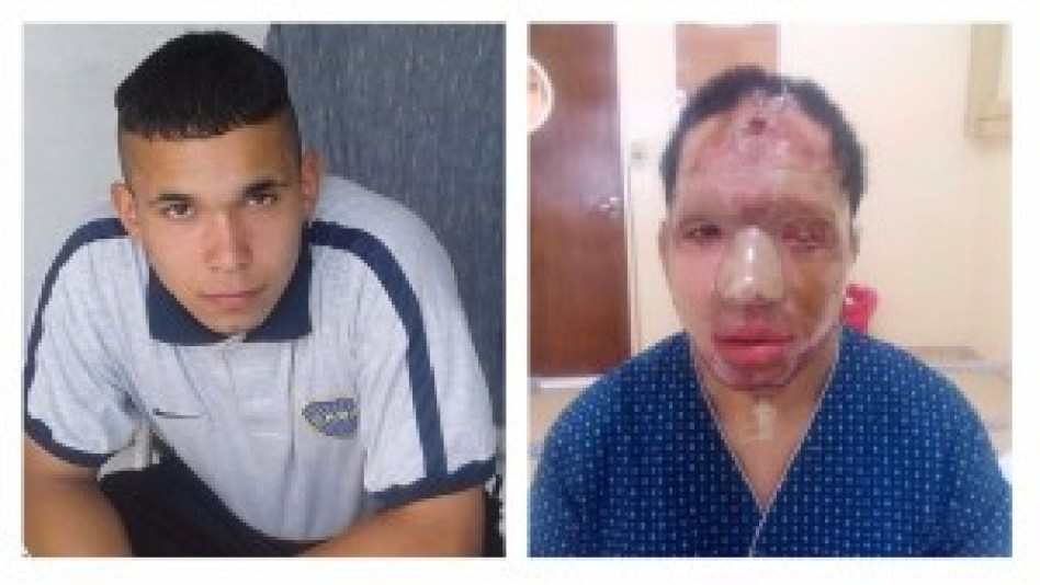 El antes y el después de Lucas Brea. El joven de 18 años trabajaba como albañil hasta que sufrió la agresión.
