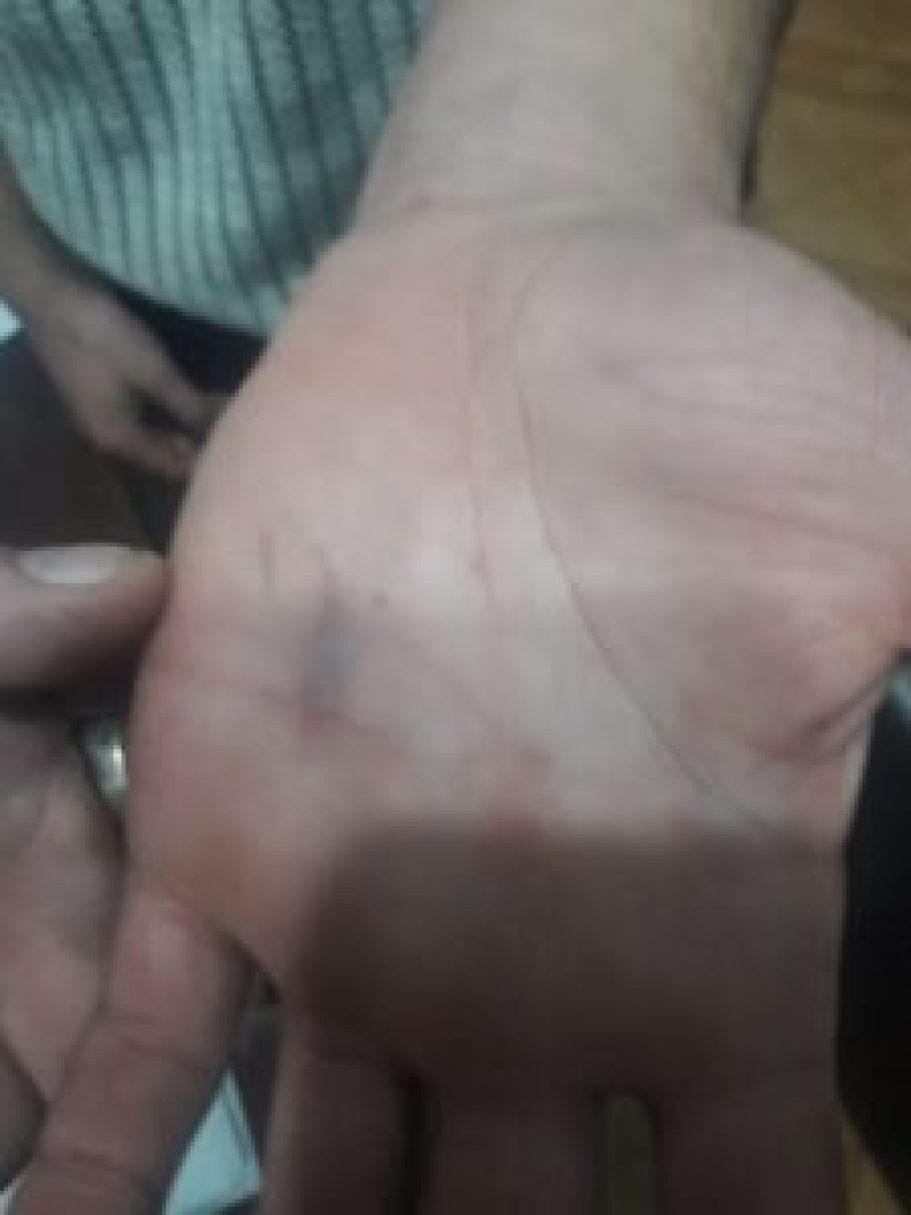 Ataque sexual en Marcos Paz