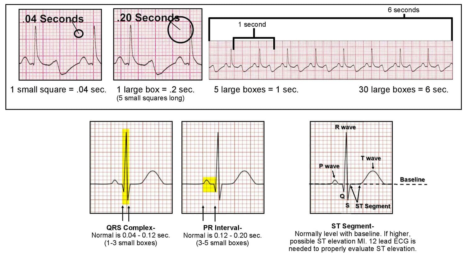 How To Read And Interpret An Ecg Ekg