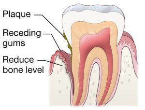 Periodontal disease treatment and management  Procare