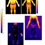 measuring skin temperature
