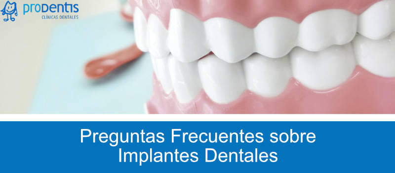 pregutnas frecuentes implantes dentales