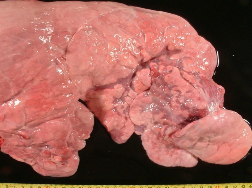 Fig. 5: Neumonía catarral purulenta, en fase de recuperación. Bandas de atelectasia, con enfisema alveolar.