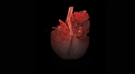 Necropsia en campo. Interpretación de lesiones: patología respiratoria.