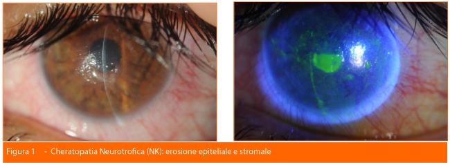 Cheratopatia Neurotrifica-erosione spinale stromale-Professione Oculista