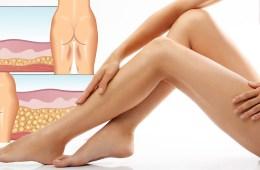 Krásné nohy lze mít i bez nezdravých diet a bolestivých zákroků. Bezbolestná liposukce umí odstranit přebytečný tuk, napnout pokožku i korigovat celulitidu.