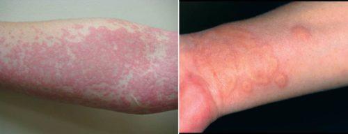 urticaria allergy
