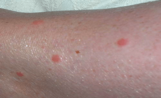 Dust Mites Treatment for Bed Bug Bites