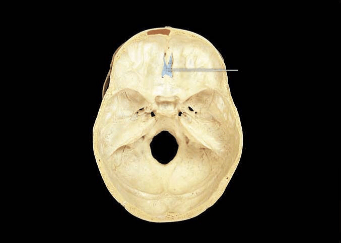 Nasal Cavity Cribriform Plate Of Ethmoid