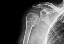 Cons Of Reverse Shoulder Replacement