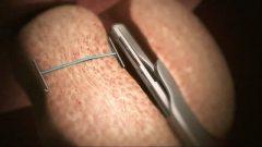 Image of the urolift procedure