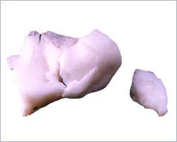 Inferior Calcaneal Spur