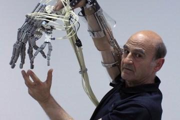robotics prosthetics improvement body functions performance control physical