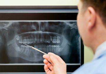 radiologia dental