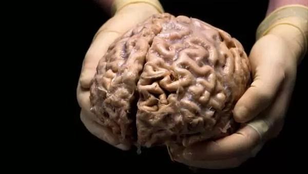 Çığır Açan Beyin Vakaları