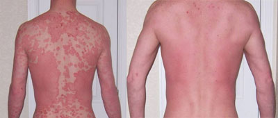 James Thomas Psoriasis Before & After