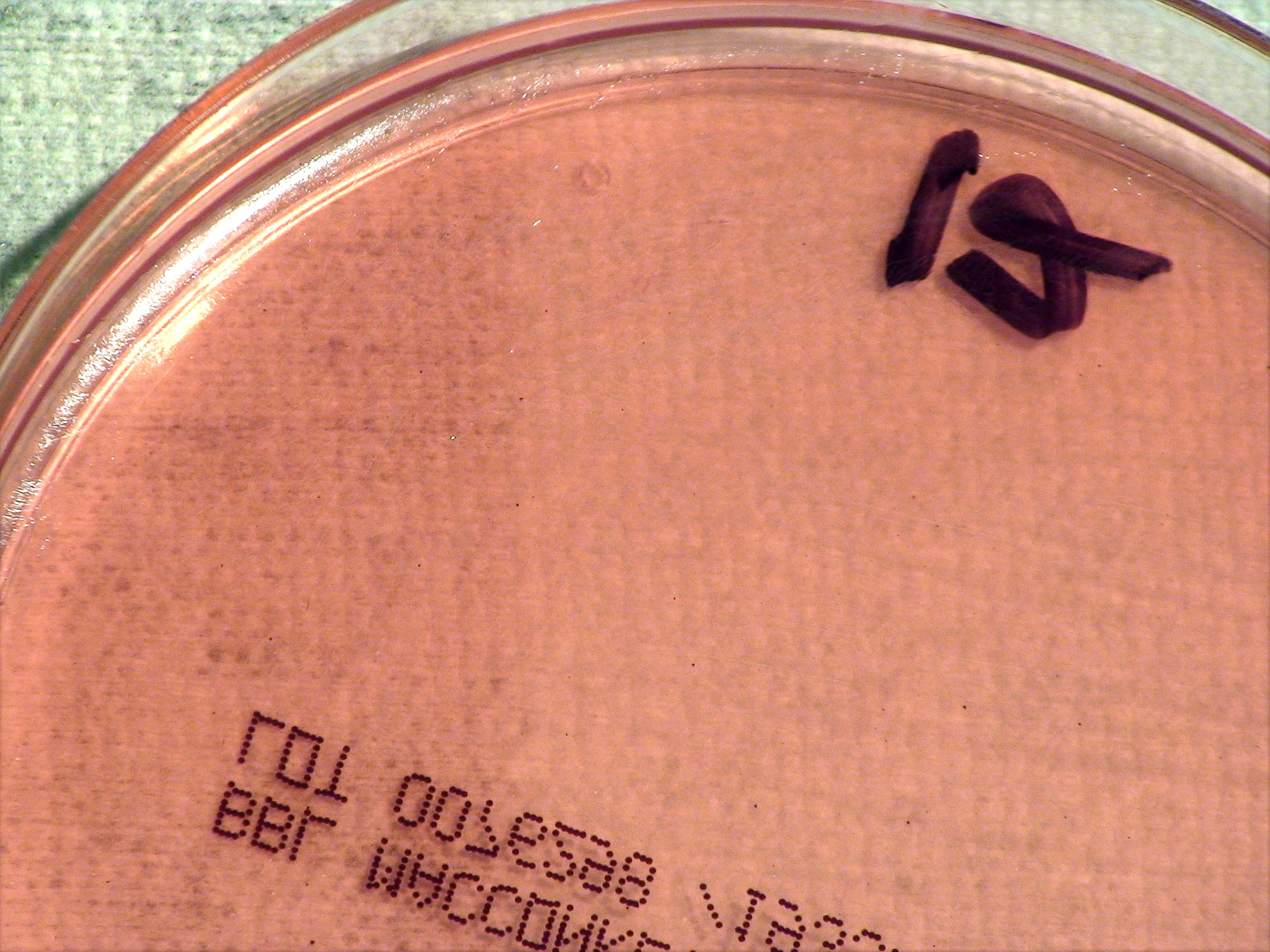 Picture of Anthrax Pathogen sample