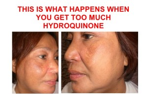 what-happens-when-you-use-too-much-hydroquinone