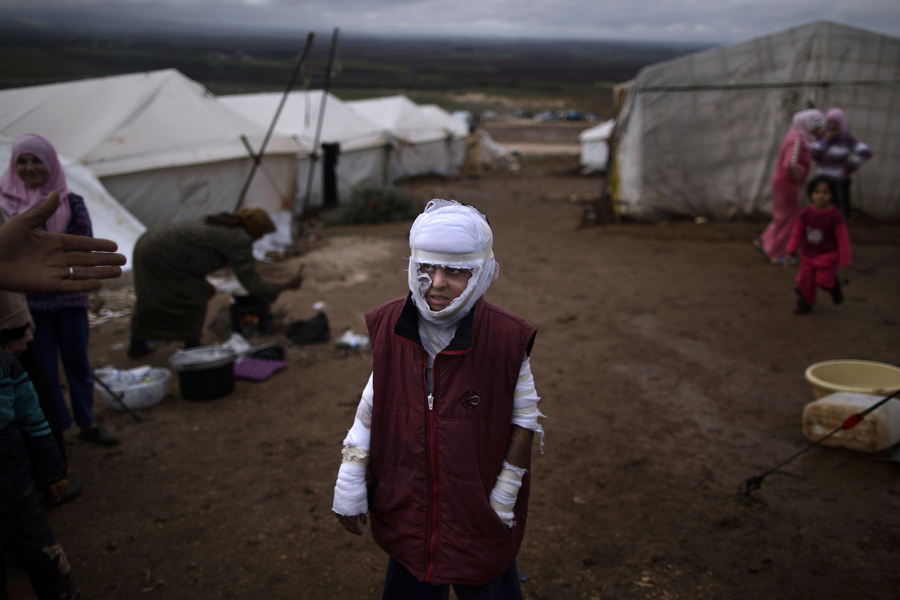 "Según figura en la web de los premios Pulitzer: ""Abdullah Ahmed, 10, who suffered burns in a Syrian government airstrike and fled his home with his family, stands outside their tent at a camp for displaced Syrians in the village of Atmeh, Syria, Dec. 11, 2012. (Muhammed Muheisen, Associated Press - December 11, 2012)"""
