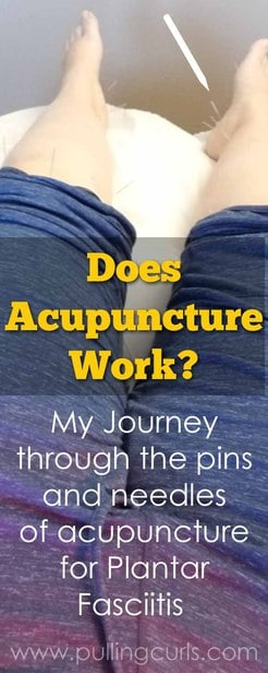Does acupuncture REALLY work?  Hurt / benefits/ weight loss / works / fertility #acupuncture #weightloss #health via @pullingcurls