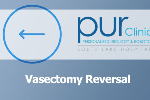 vasectomy-reversal