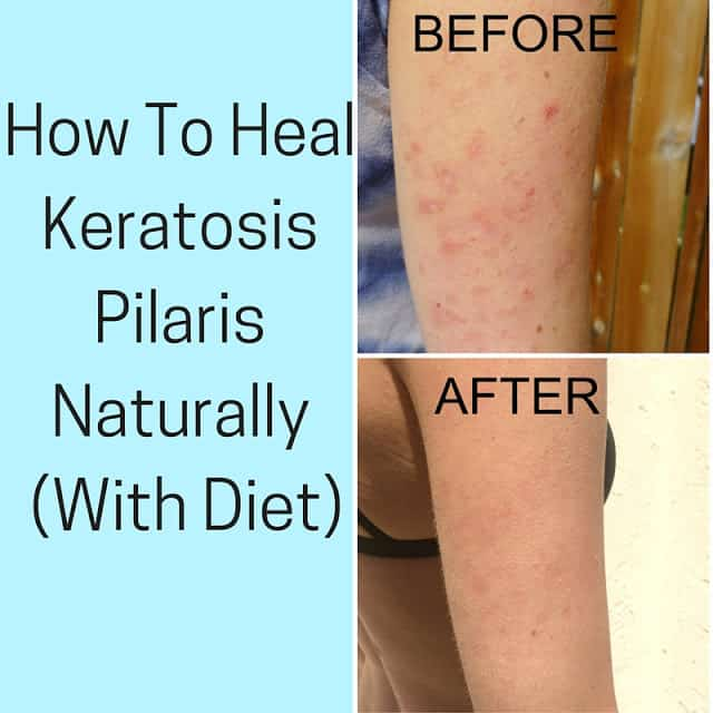 How To Heal Keratosis Pilaris With Diet Pure And Simple
