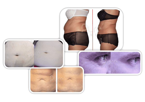 laser assisted inch loss with laser lipo and cavitation