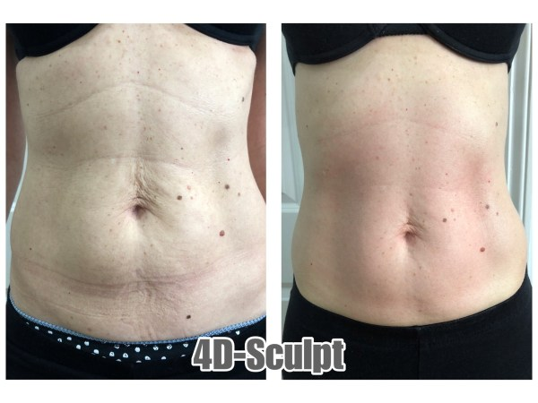 Abdomen Cavi RF Single Treatment Results 1